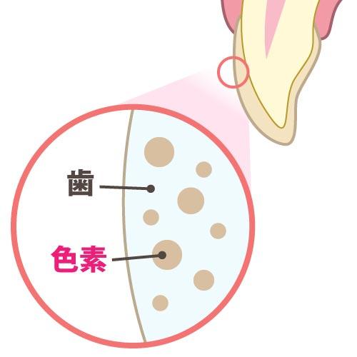 歯の内部の色素