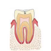 イラスト図:虫歯C1