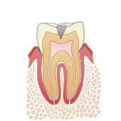 イラスト図:虫歯C2