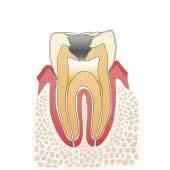 イラスト図:虫歯C3